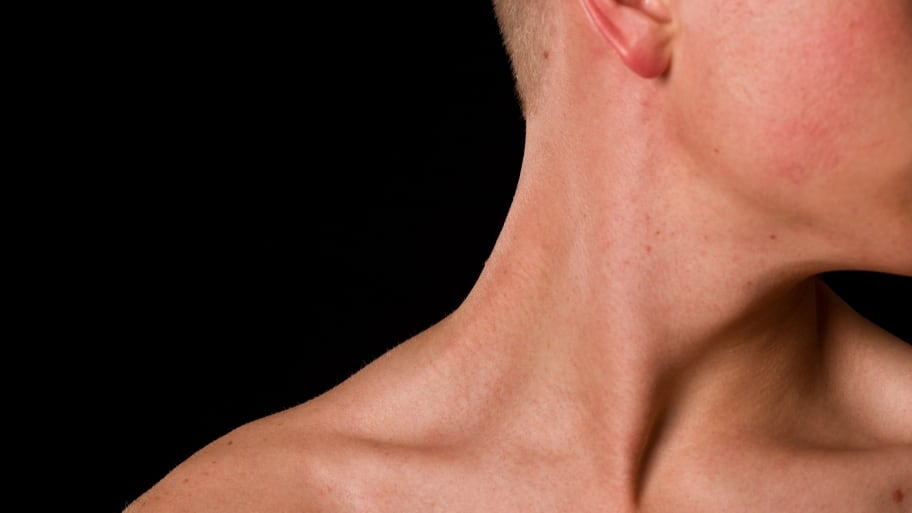 picture of outside edge of a man's neck.